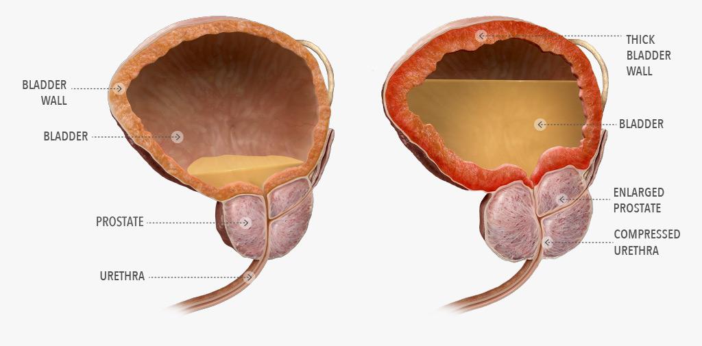 Image result for bladder enlarged prostate