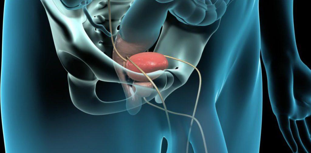Stones Prostatites)